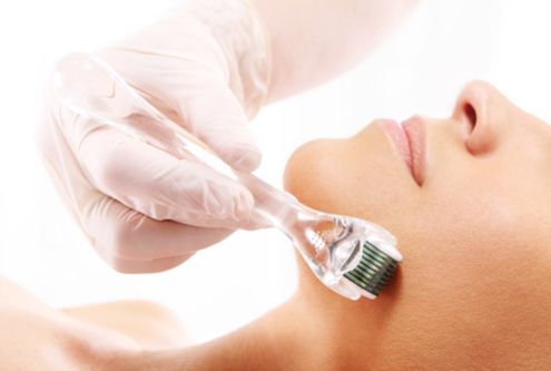 What is Microneedling; and why are people making a fuss about it?